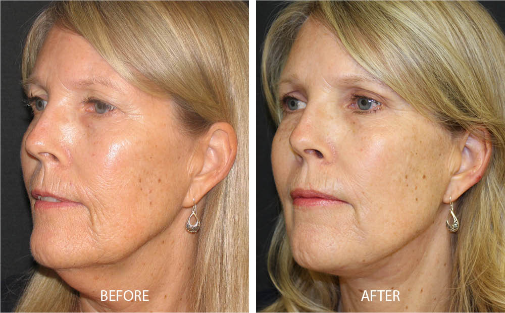 Before & After Face Lift