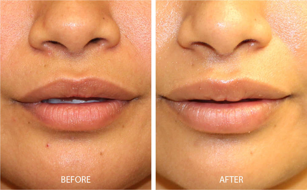 Before & After Lip Augmentation