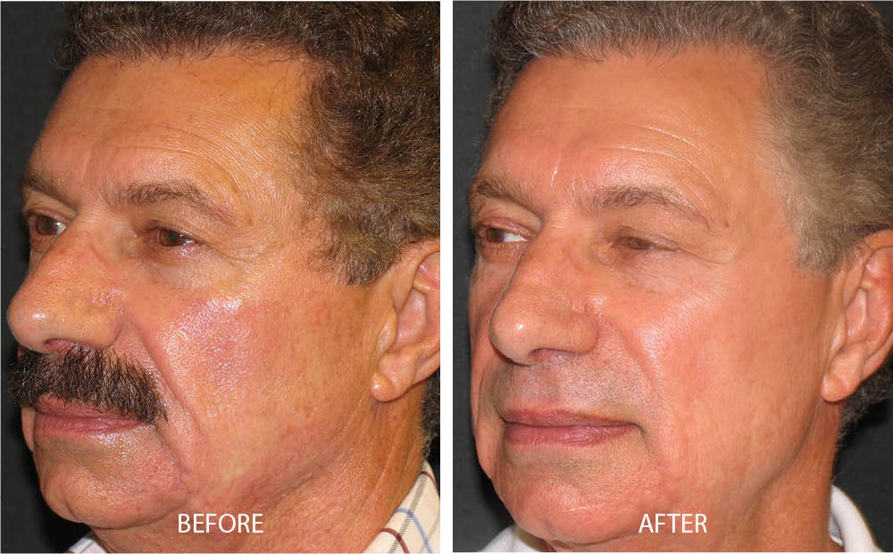 Before & After Photo Rejuvenation