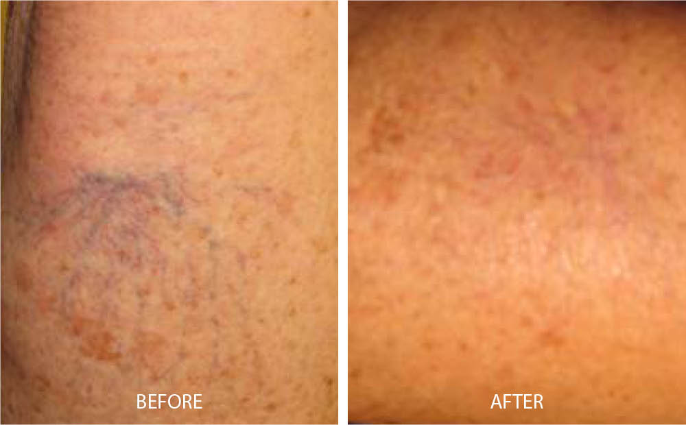 Before & After Laser Vein Treatment
