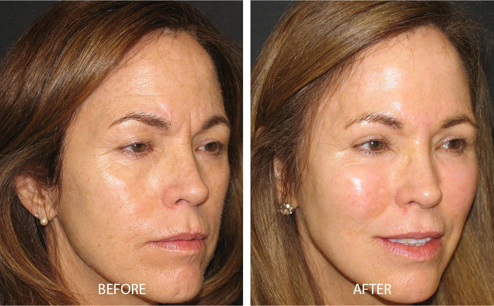 Before & After Facial Fat Transfer