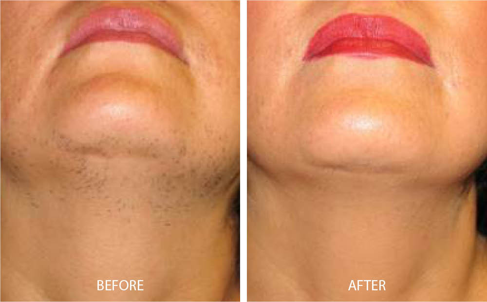 Before & After Laser Hair Removal