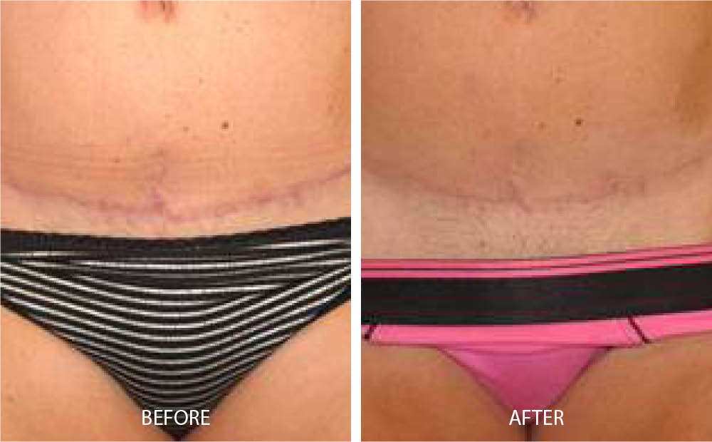 Before & After Laser Scar Treatment