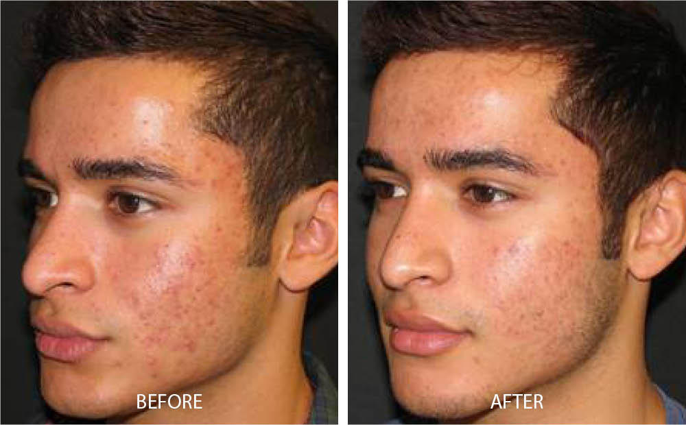 Before & After Laser Acne Treatment