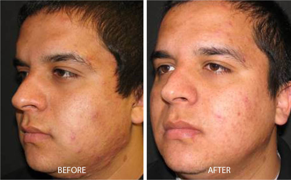 Before & After Laser Can Treatment
