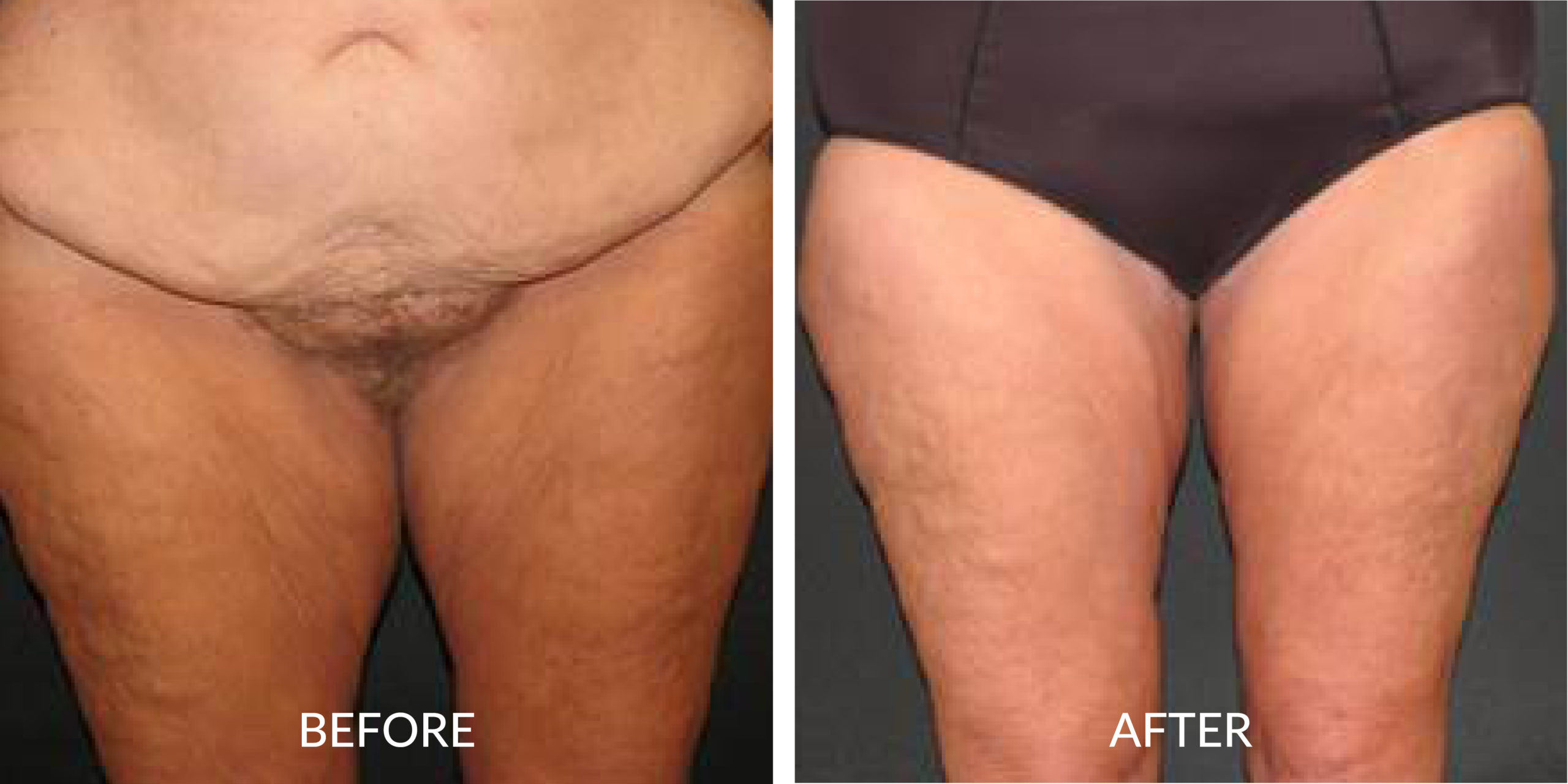 Before & After Inner Thigh Lift
