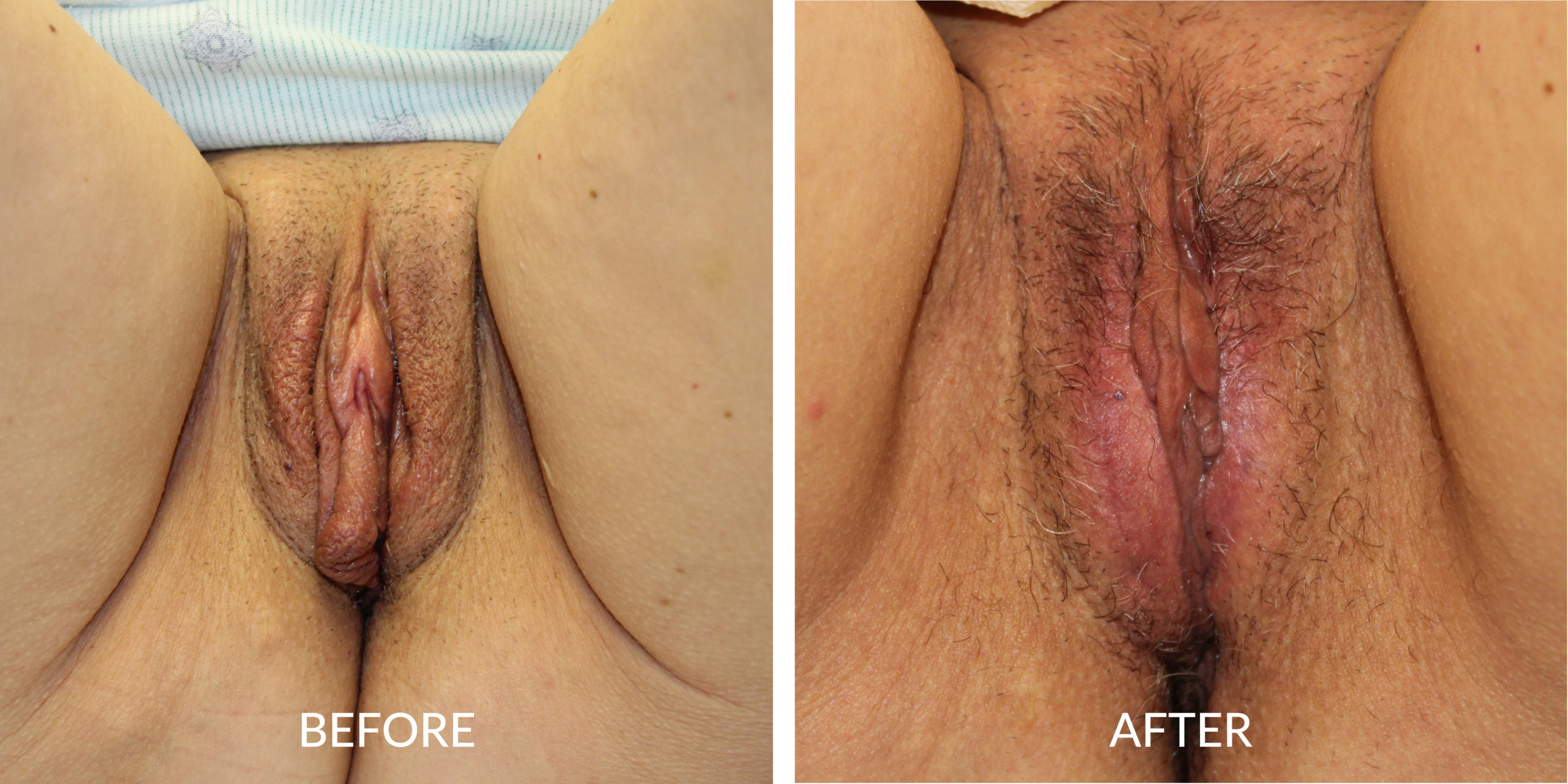Before & After Labioplasty