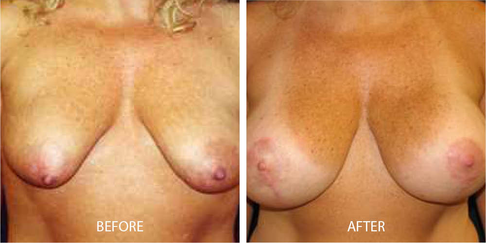 Before & After Breast Mastopexy with Impant