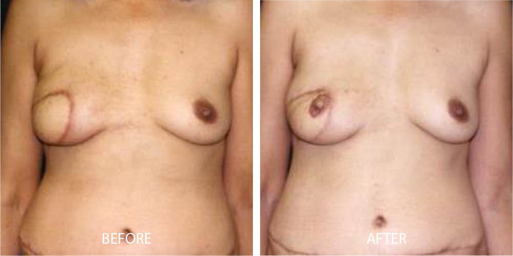 Before & After Breast Reconstruction
