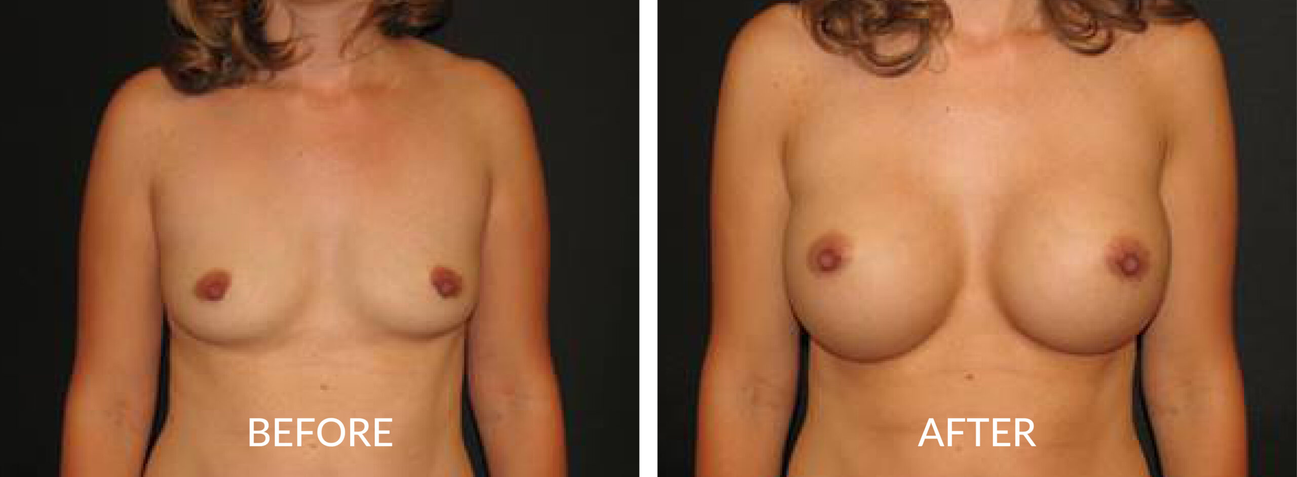 Before & After Breast Augmentation