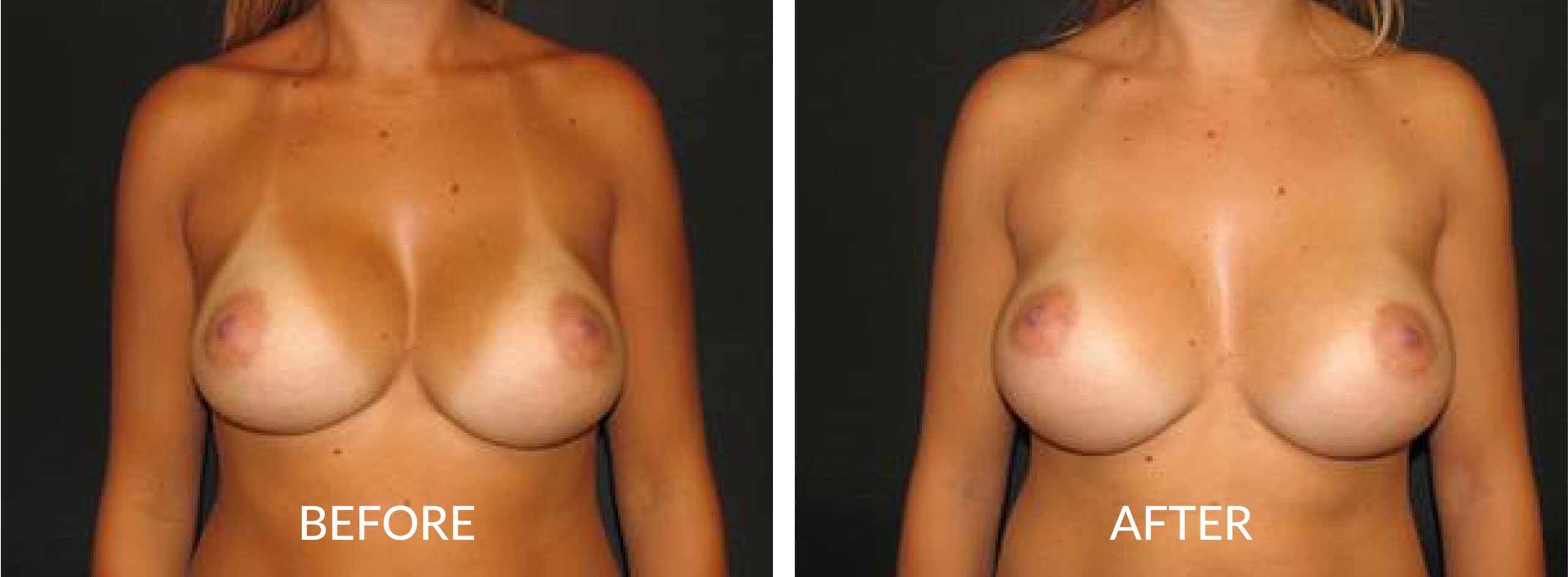 Before & After Breast Revision