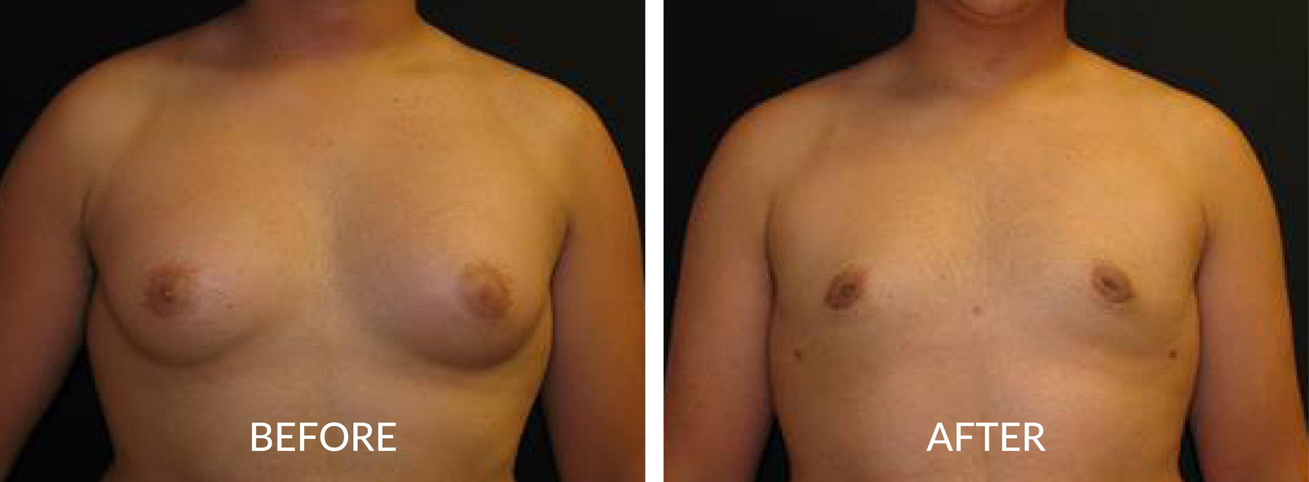 Before & After Gynecomastia