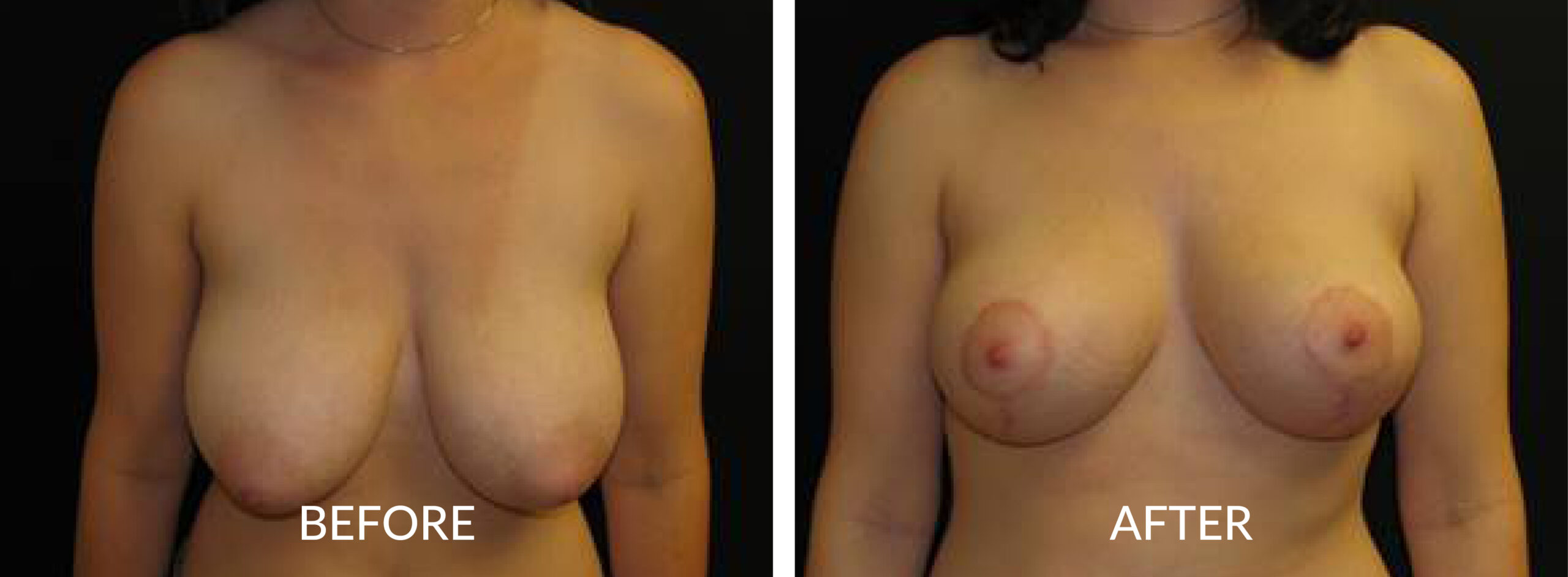 Before & After Breast Mastopexy & Reduction