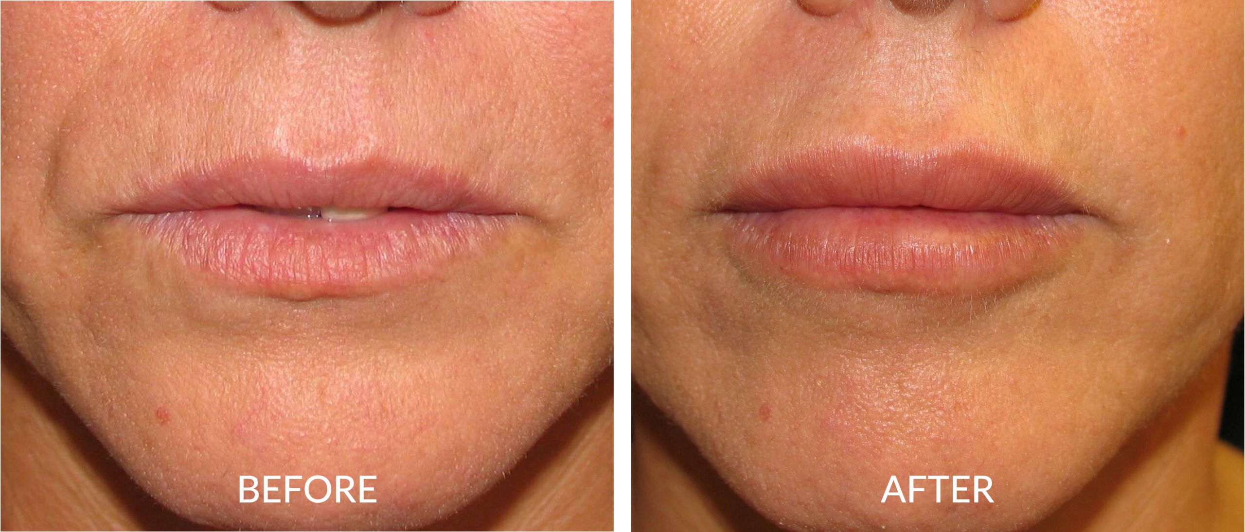 Before & After Cosmetic Injectables