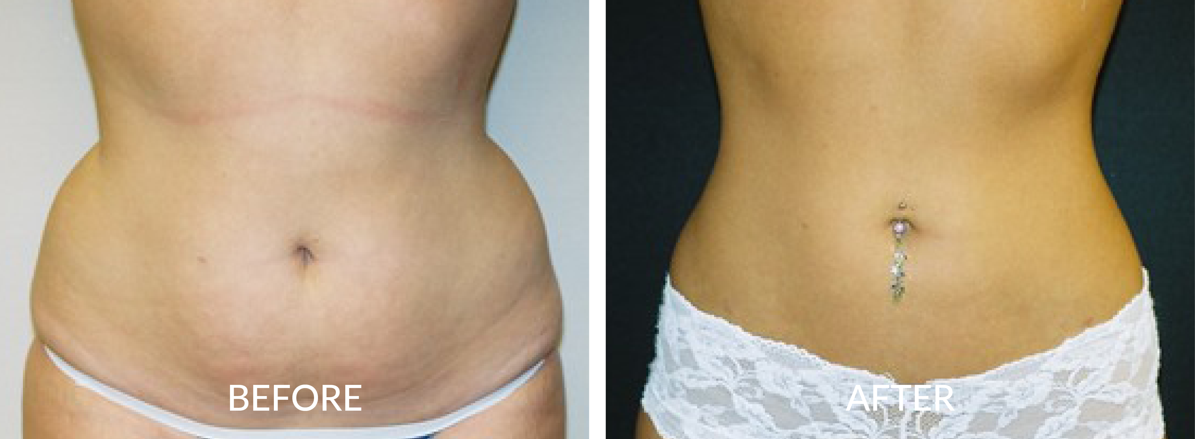 Before & After Liposuction